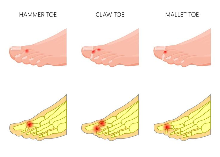 Ever wondered just what is a hammer toe? Get your questions answered in this article, as well as tips and tricks to help you out.