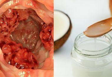 Limpiar las arterias obstruidas para eliminar el colesterol malo se puede realizar de varias maneras y es muy recomendable para la liberación de las toxinas del cuerpo