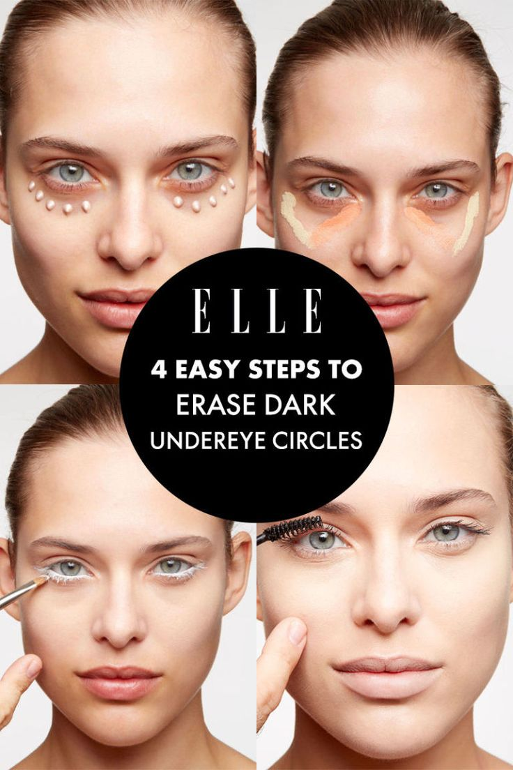 how to get rid of dark spots around eyes