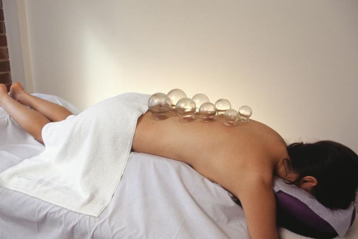 What Are the Benefits of Cupping Massage?