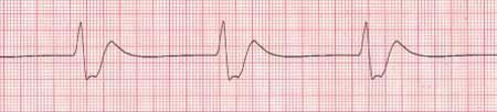 Idioventricular Rhythm There are a few Ventricular Rhythms: Idioventricular, Ventricular Tachycardia (V-tach), and Ventricular Fibrillation (V-fib). None of these rhythms are capable of sustaining life for any great length of time. Ventricular Rhythms originate in the final backup pacemaker for the heart, the bundle branches/purkinje fibers. Idioventricular will have no P-wave as the atrias are not contracting. The QRS complex will be very wide and regular, a dying electrical system.