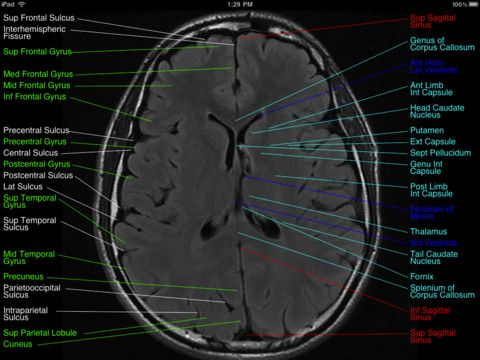 29 best mri images on pinterest human body medicine and radiology normal brain mri ccuart Choice Image