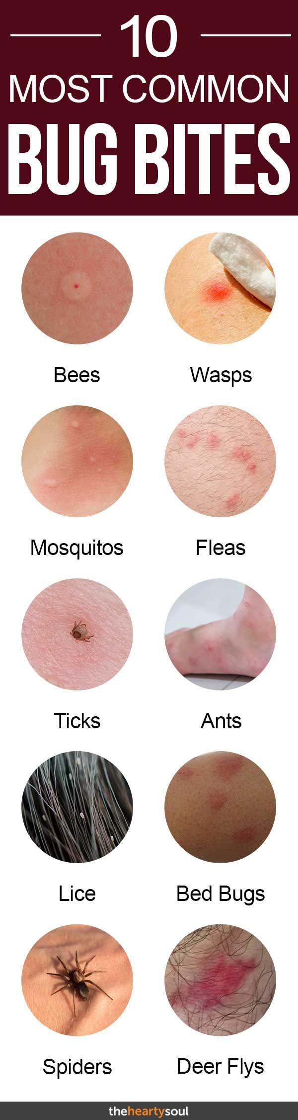 fleas, ticks, black widow spiders, chiggers, fire ants