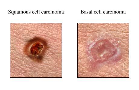 Natural Remedies For Basal Cell Cancer