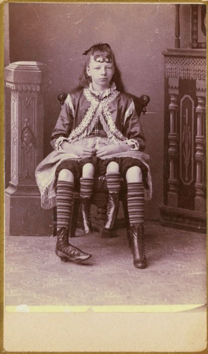 WHAAAATTTT! ----Josephene Myrtle Corbin, the Four-Legged Woman, was born in Lincoln County, Tennessee in 1868. Rather than having a parasitic twin, Myrtle's extra legs resulted from an even rarer form of conjoined twinning known as dipygus, which gave her two complete bodies from the waist down. She had two small pelves side-by-side, and each of her smaller inner legs was paired with one of her outer legs. She could move the smaller legs but was unable to use them for walking. At the age of…