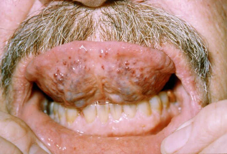 disease | Osler-Weber-Rendu disease with sublingual telangiectasias