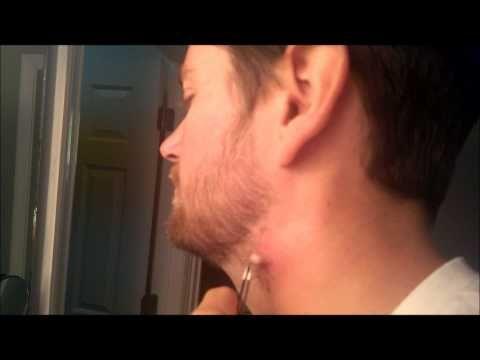 Sebaceous Cyst Treatment | Pulsing Ingrown Hair Removal