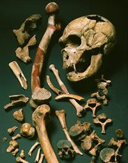 """Arthritis was common in the older Neanderthal population, specifically targeting areas of articulation such as the ankle (Shanidar III), spine and hips (La Chapelle-aux-Saints """"Old Man,"""" shown), arms (La Quina 5, Krapina, Feldhofer), knees, fingers, and toes."""