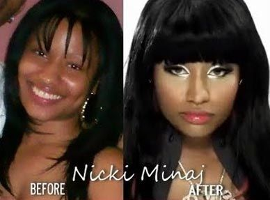Nicki Minaj before and after plastic surgery (images courtesy of http://www.mydochub.com)
