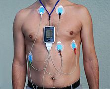 Holter monitor - Wikipedia, the free encyclopedia