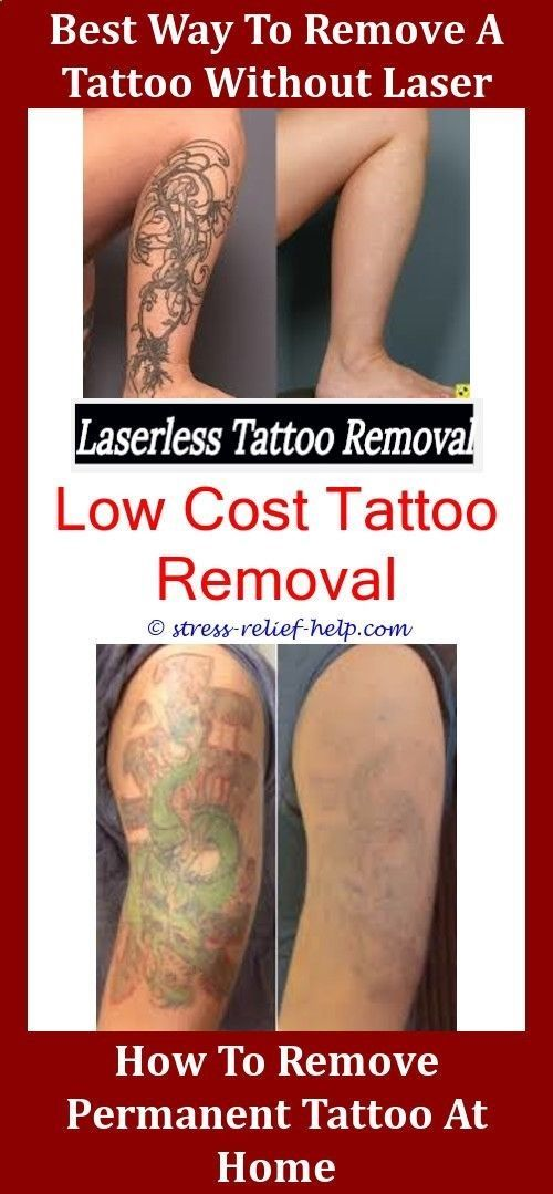 Does Tattoo Removal Hurt More Than Getting A Tattoo How Much Does It