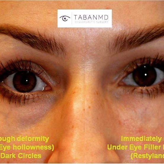 FILLER injection under eyes in young woman to treat tear trough deformity creating hollowness with dark circles and eye bags. Before and Immediately after #restylane injection photos, superimposed next to each other, are shown. Goal is to reduce tired eye appearance. The result lasts 1 year or longer.