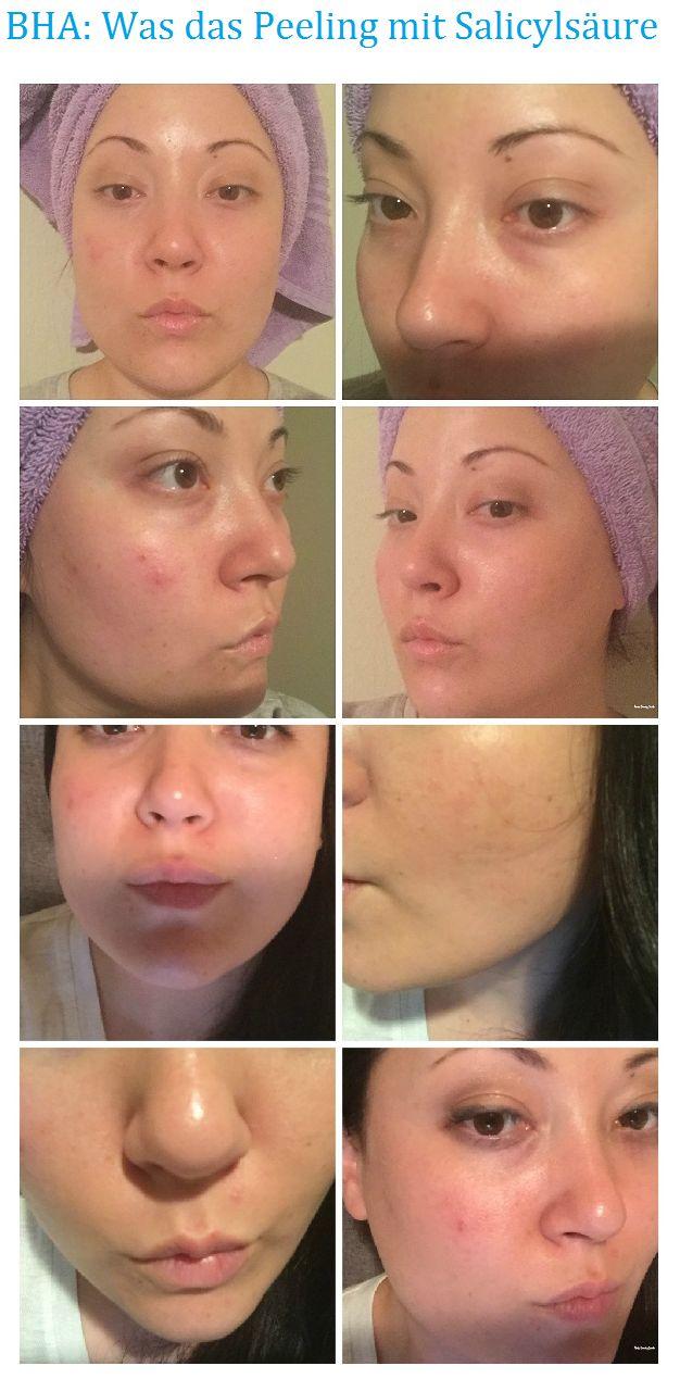Auch das Salicylsäurepeeling ist eine Behandlungsmethode, die begleitend bei der Therapie der Akne und zur Hautbildverbesserung von grobporiger und talgiger Haut eingesetzt wird. Salicylsäure kommt in der Natur hauptsächlich in Weidenrinde vor, die seit langem zur Behandlung unterschiedlicher Hauterkrankungen angewendet wird. Salicylsäure ist in der Lage, die Verbindung zwischen einzelnen Hautzellen zu lockern, was das Entfernen abgestorbener Hautteilchen erleichtert. Gleichzeitig regt sie…