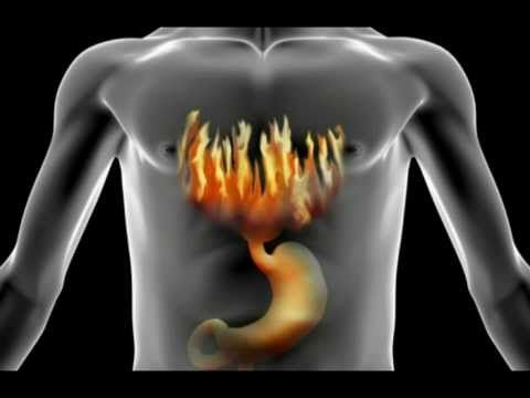 How To Treat, Cure & Stop Heartburn | Acid Reflux (My Story) - http://mauburnca.com/acid-reflux-remedy/how-to-treat-cure-stop-heartburn-acid-reflux-my-story/