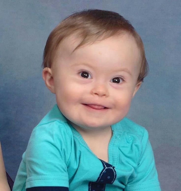 Baby Jude on his birthday! ♥ Down syndrome awareness