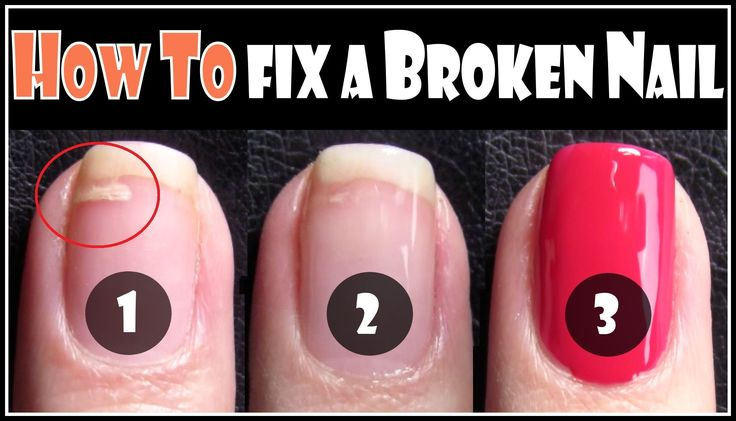 Cool way to fix broken nails: HOW TO FIX A BROKEN NAIL | REPAIR YOUR SPLIT NAILS EASY STEP BY STEP TEC...