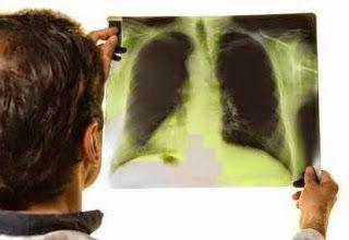 Atasi Tumor Paru Secara Alami >> Penyakit tumor bisa tumbuh dimana saja termasuk pada organ pernapasan paru paru. Penyakit tumor paru paru adalah penyakit dengan ciri khas adanya pertumbuhan sel yang tidak terkontrol pada jaringan paru paru. Petumbuhan penyakit ini akan berkembang keluar dari paru paru melalui suatu proses bernama metastasis jika tanpa adanya perawatan.