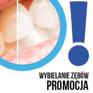 Promocja na #wybielanie! #Beyond – #Wybielanie #akceleratorem Cena z cennika = 1000 PLN PROMOCJA 30% CENA W PROMOCJI = 700 PLN! Podczas zabiegu trzykrotne wybielanie 3x 15min.