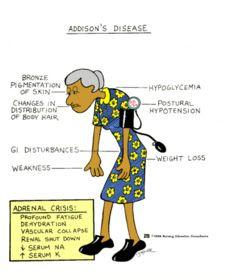 ADDISON'S   DISEASE      CUSHING'S   DISEASE         Definition      Hyposecretion of   adrenocortical hormones leading to:  ...