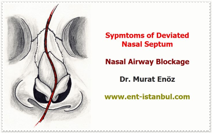 Septoplasty Operation  http://www.ent-istanbul.com/Septoplasty.html  Deviated Nasal Septum - Symptoms of Nasal Septum Deviation - Computer Tomography Imaging Before The Septoplasty Operation - Technique of Septoplasty Operation - Caudal Septoplasty and  External Strut Graft Technique  Murat Enoz, MD, Otorhinolaryngology, Head and Neck Surgeon  ENT Doctor in Istanbul