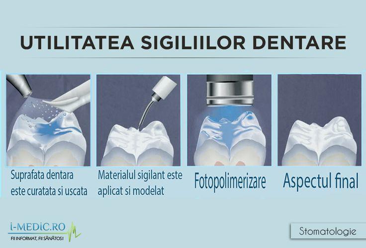 Sigiliul dentar reprezinta un material protector rasinos ce are rolul de a imbraca dintii. Aceste sigiilii dentare sunt aplicate in forma lichida pe suprafata orizontala a dintilor din spate (premolari si molari), intrucat acestea sunt cele cel mai frecvent afectate de carii. http://www.i-medic.ro/stomatologie/utilitatea-sigiliilor-dentare