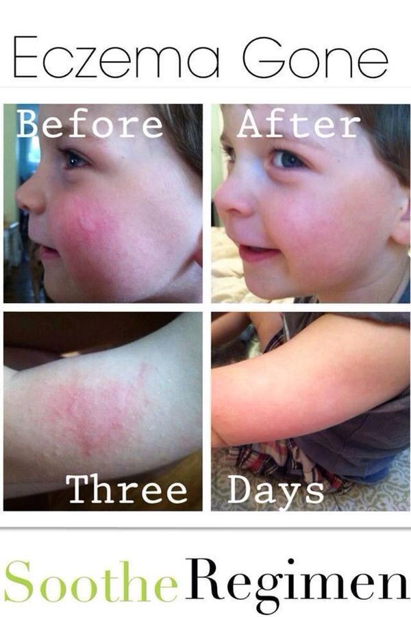 Rosacea without redness