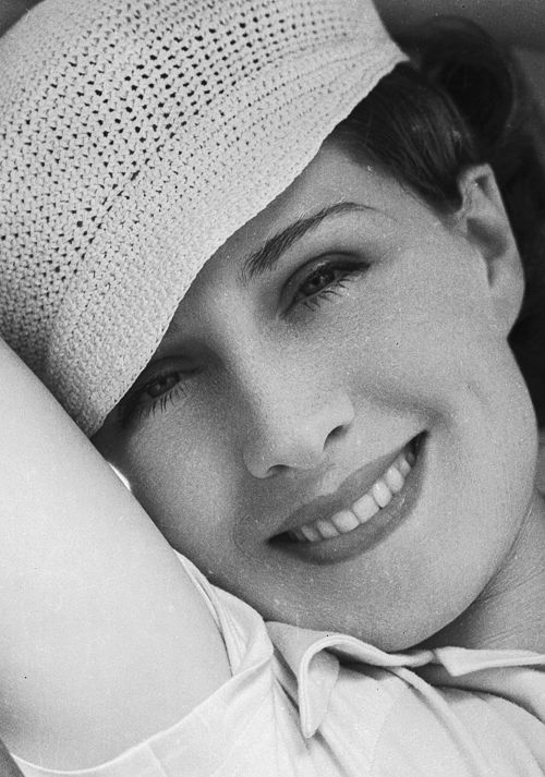 Norma Shearer was one of the most popular actresses in North America from the mid-1920s through the 1930s.  She spent much money on eye doctor's services trying to correct her cross-eyed stare caused by a muscle weakness...  http://www.imdb.com/name/nm0790454/bio