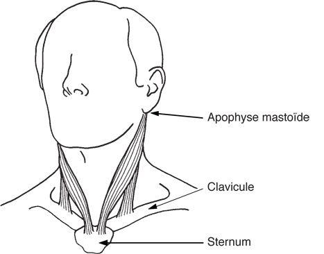 Migraines, douleurs à la mâchoire et à l'oreille : la solution trigger points