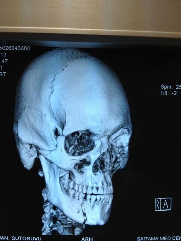 Maxilar quebrado de Stefan Struve depois da luta contra Mike Hunt no UFC Japão