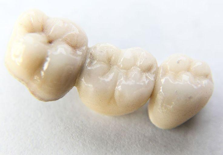 Une alternative aux implants dentaires est le bridge. http://cliniquedentaire-budapest.eu/dentaire-hongrie/implants-dentaires-hongrie