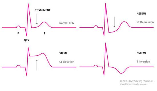 Illustration of normal ECG and ECGs showing STEMI and NSTEMI.