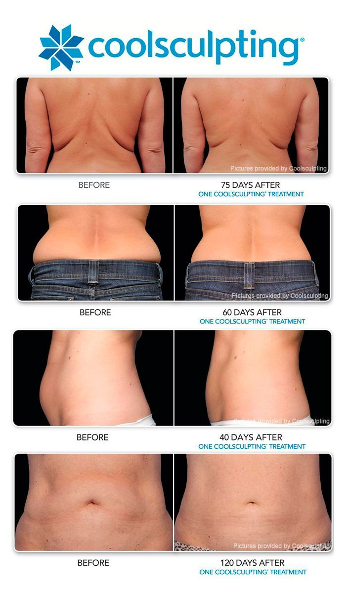 Diet and exercise alone do very little to get rid of these lumpy, fatty deposits. Until recently, the only option to restore smooth, taut skin was a surgical procedure, which included both discomfort and a lengthy recovery. CoolSculpting is an innovative treatment designed to reduce these areas of ugly cellulite, without the recovery time of a more invasive procedure.: