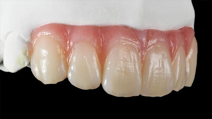 6-unit occlusally screwed anterior Prettau® Bridge - Dr. Arturo Godoy Senties