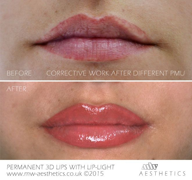 3D Permanent Lips with Lip Light