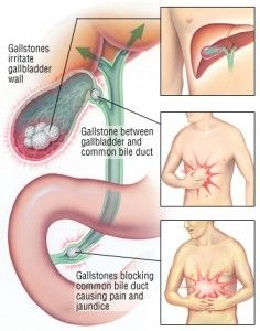 Healing the gallbladder with essential oils. From The Lightsome Life