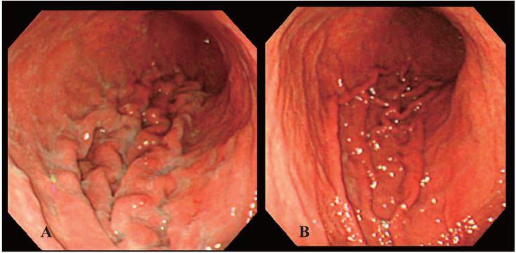 mild chronic gastritis | gastritis | pinterest, Skeleton