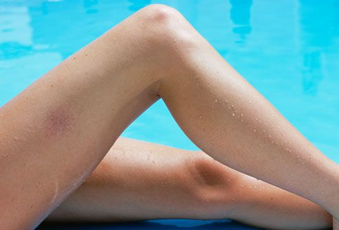 Did you know that #Varicose Veins appear in up to 60%  of adults. Here's what causes them and how to make them disappear.