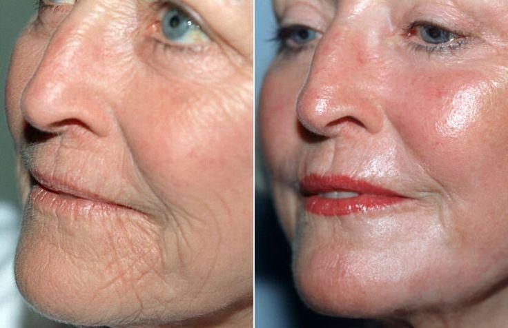 Bőrfiatalító kezelés, az arcodról és a nyakadról eltűnnek a ráncok! - Bidista.com - A TippLista!