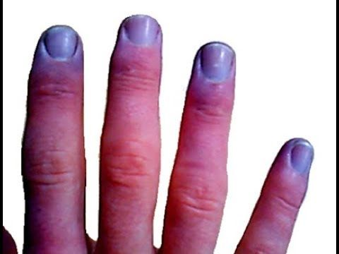 hello welcome to health and fitness please leave your comment after watching this video and also subscribe our Channel twelve changes in your fingernails that could signal other problems a healthy fingernail is bendable slightly curved downwards and is light pink in color if your nails...