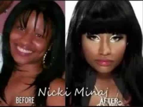 Nicki Minaj Before And After Plastic Surgery And Fame My