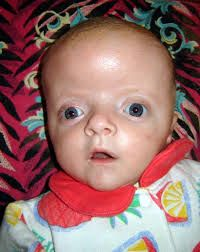 apert syndrome - Google Search