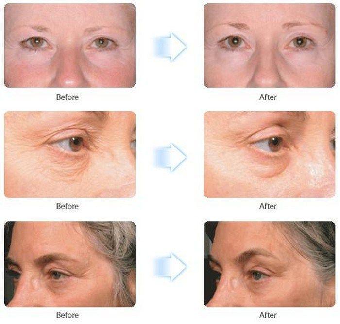 a488686634135d851d6ac1e92daec976 - How To Get Rid Of Eye Wrinkles And Crow S Feet