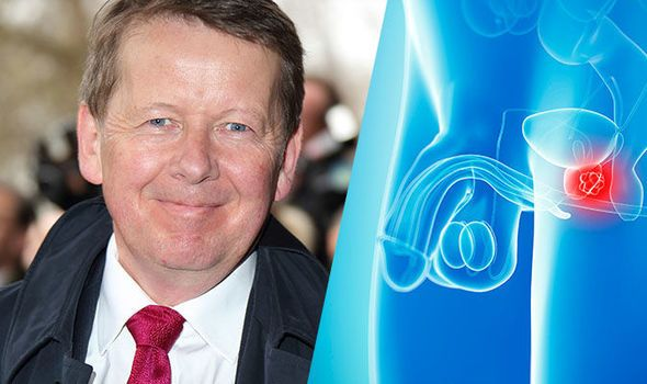 Prostate cancer: Presenter Bill Turnbull diagnosed with disease - symptoms to look out for