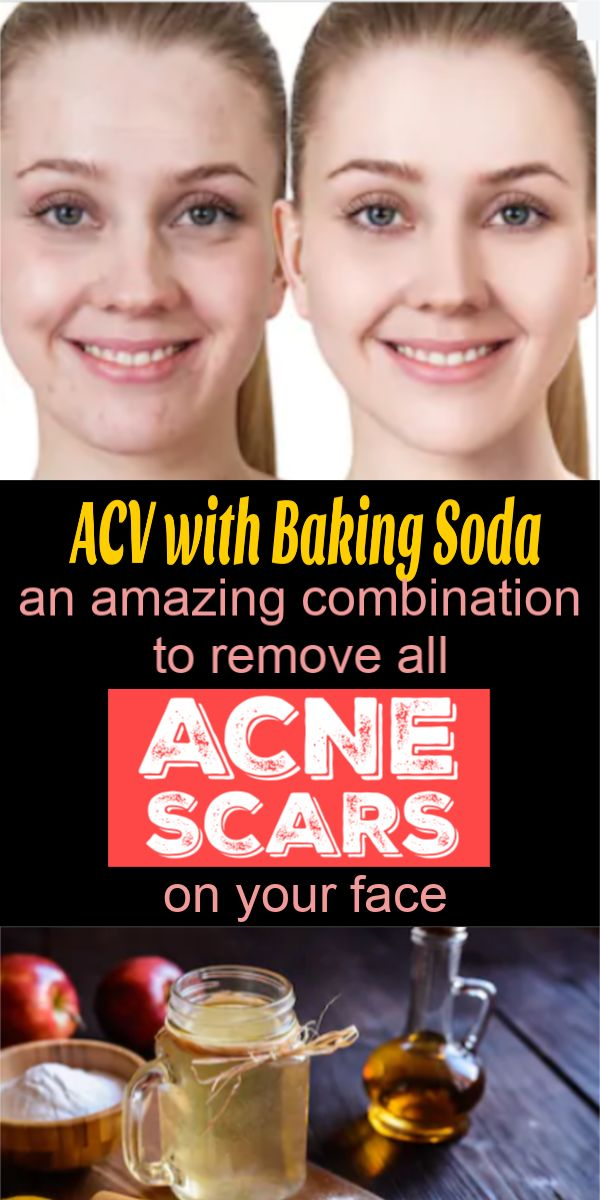 ACV with Baking Soda, an amazing combination to remove all acne scars on your face