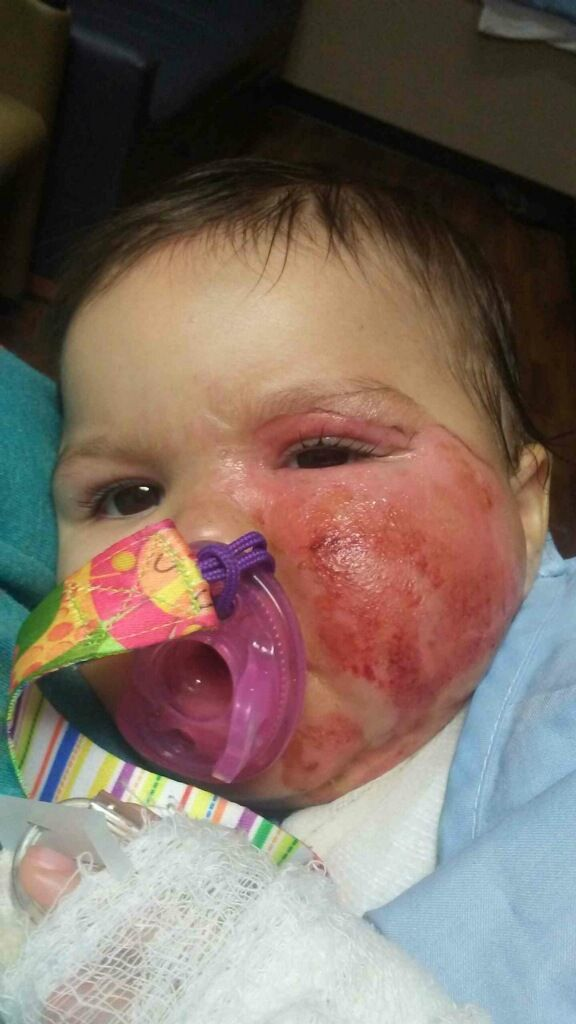 Fox News Oklahoma Infant Suffers Second Degree Burns After