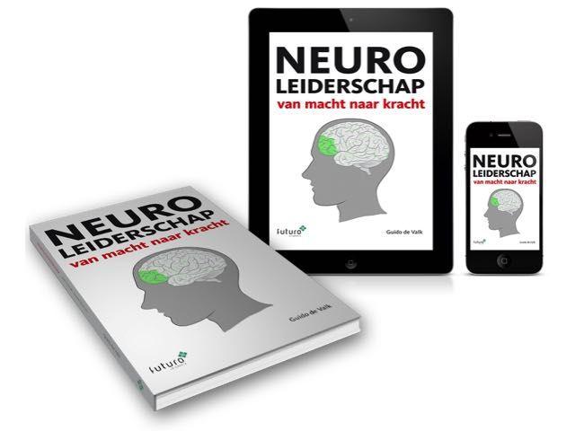 Mooi artikel van Guido de Valk (auteur Neuroleiderschap) 'Jeuk van de micromanager' in Intermediair. #guidodevalk #neuroleiderschap #intermediair #futurouitgevers