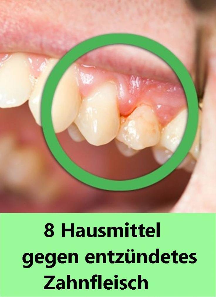 8 Hausmittel gegen entzündetes Zahnfleisch | njuskam!