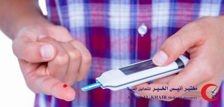 تحليل السكر طريقة تحليل السكري في المختبر تحليل السكري صائم وشرب الماء تحليل السكري بعد الاكل تحليل السكري للحامل تحليل Medicine Hair Straightener Beauty
