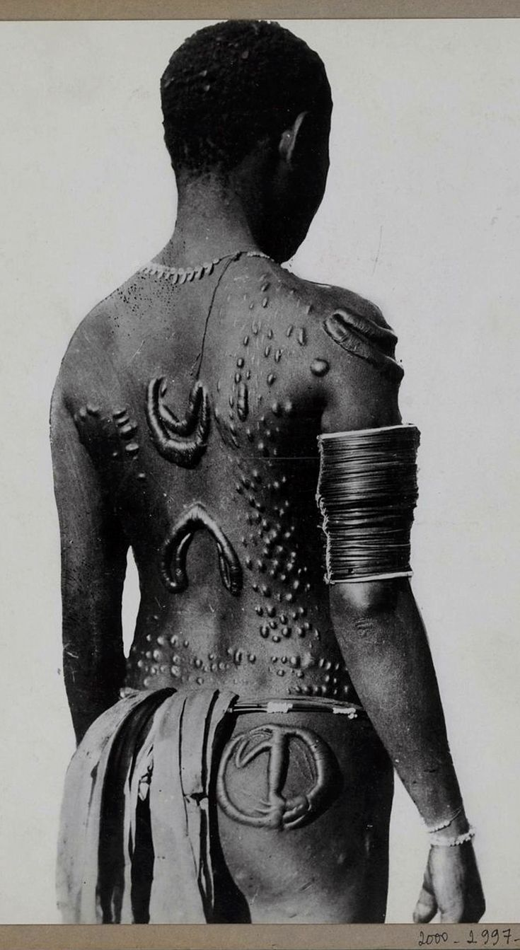 Melanesia ~ New Britain | Tattoo 'embroidered' on the back of a native; body ornamentation obtained by scarification.  Gasmata.  1930 - 1935 | ©Musée du quai Branly, photo Edmond Demaître.