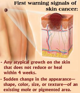 Warning signs of skin cancer skin cancer cancer and warning signs